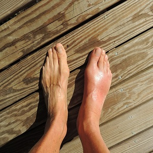 foot pain treatment in canberra